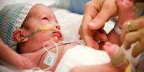 عفونت خونی نوزادی نتیجه چاقی مادر