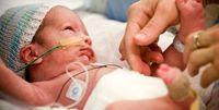 زایمان زودهنگام باعث بستری کودک در بیمارستان میشود