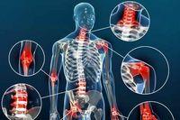 درمان آرتروز بدون دوا و دکتر