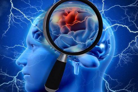وقتی فشار خون مغز را تهدید میکند