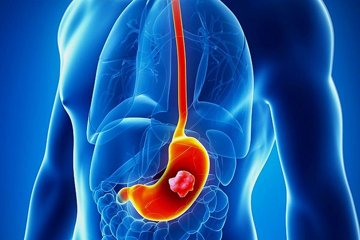 اصلی ترین علامت سرطان معده چیست؟