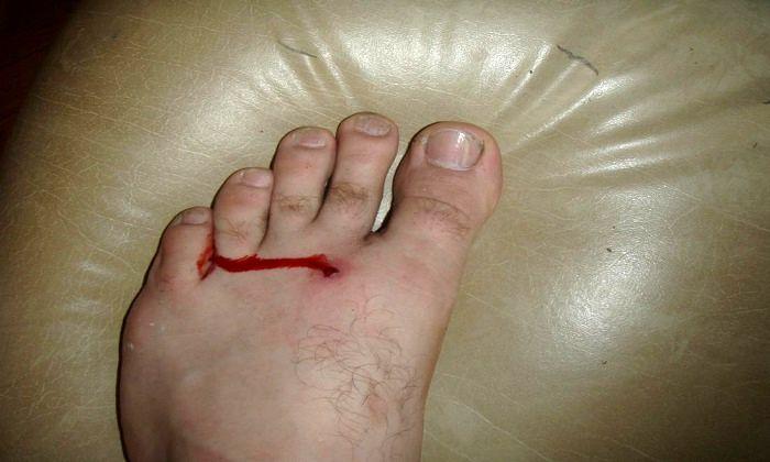 دانستنیهایی درباره عفونت پا