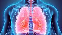 آیا تخریب ریه علامت دارد یا خاموش است؟