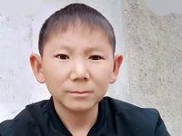 مردی ۳۴ساله با چهرهی کودک ۹ساله +عکس