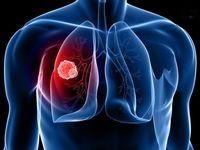 داروهای ضدانعقاد جدید برای جلوگیری از آمبولی
