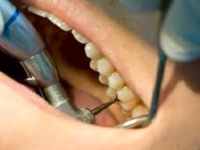 کیفیت آموزش دندانپزشکی ایران بالاتر از کشورهای اروپایی
