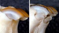 امکان رشد مجدد دندانهای دائمی وجود دارد؟