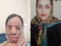 حبس و دیه، مجازات عروس اسیدپاش