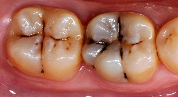 مخدرهای سنتی و صنعتی بر دندانها چه تاثیری دارد؟