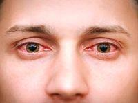 9نشانه یک عفونت چشمی خطرناک