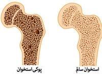 مولکول موثر در بروز پوکی استخوان، شناسایی شد