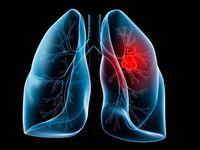 داروی سرطان ریه کشف شد؟