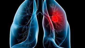 افزایش 43درصدی مرگ و میر زنان در اثر سرطان ریه
