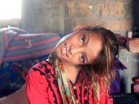 اختلال عجیب دختر ۱۱ساله پاکستانی +عکس