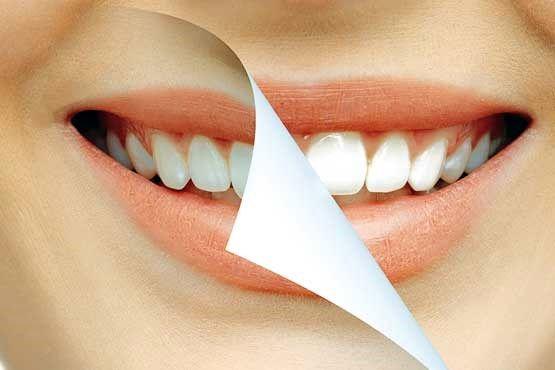 ترمیم مینای دندان بدون پرکردن +عکس