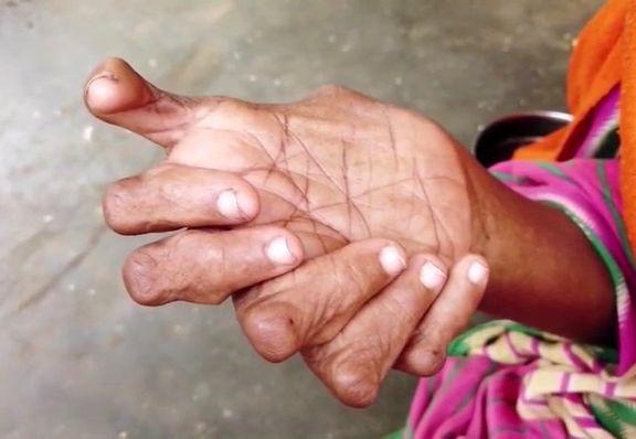 تصاویری از یک زن هندی که ۳۱انگشت دارد