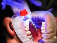 دندانی که 20سال در بینی بود +عکس