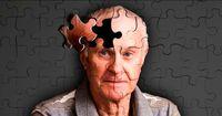 عامل ژنتیکی بیماری آلزایمر شناسایی شد