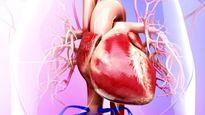 کاهش سطح کلسترول از طریق ورزش برای سلامت مغز مفید است