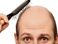 ریزش روزی چند تار مو طبیعی است؟