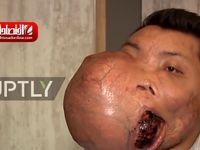 مردی که 5 کیلو تومور در صورتش داشت! +فیلم