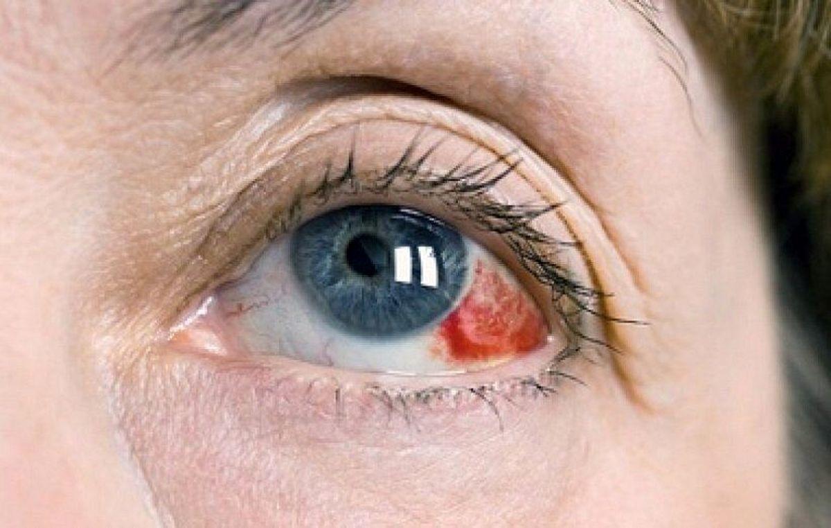 دلیل ایجاد لکههای قرمز در سفیدی چشم