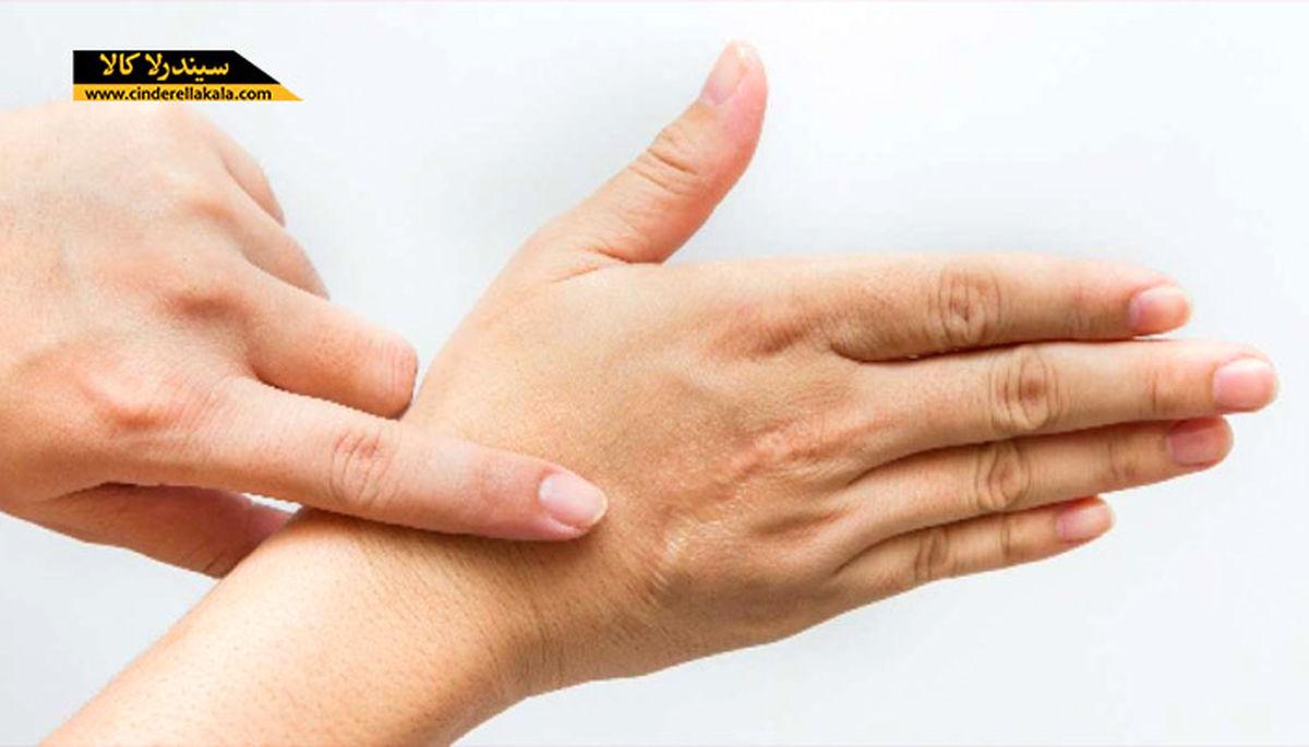 توصیه های مهم برای پیشگیری از خشک شدن پوست