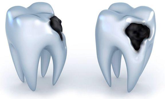 ابداع روشی برای بازسازی مینای دندان