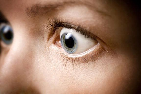 چه افرادی مستعد ابتلا به تیروئید چشمی هستند؟