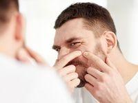 ماسک و روغنهای طبیعی بهترین داروی پوست