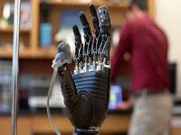 احساس درد در اندامهای مصنوعی با پوست الکترونیکی