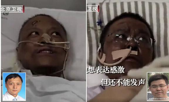 پوست ۲پزشک نجات یافته از کرونا تیره شد! +عکس