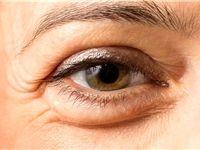 نکات طلایی برای برطرف کردن پف زیر چشمها