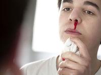 دستورالعمل مواجهه با خونریزی و قطع عضو