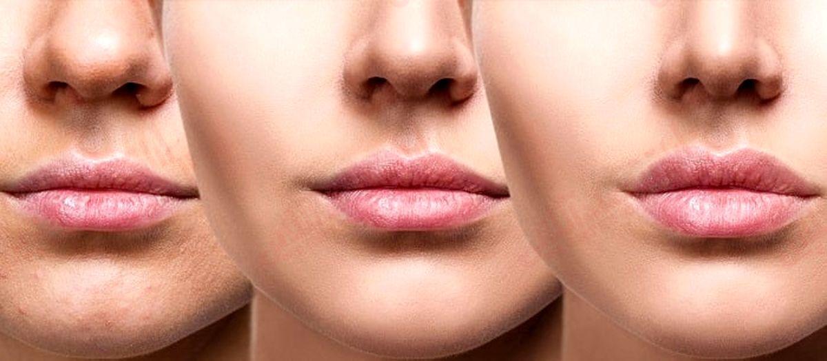 ۱۴ راه برای داشتن لب هایی سالم