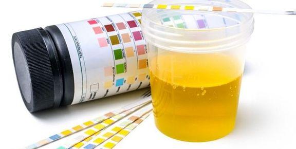 تشخیص زودهنگام سرطان پروستات با آزمایش ادرار