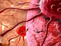 نکاتی مهم درباره سرطانهای دستگاه گوارش