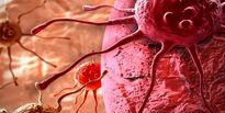 شکار سلولهای سرطان کشنده مغز با ویروس اِبولا