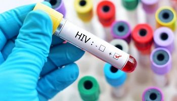 موج سوم ایدز قربانی میگیرد