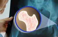 یک توصیه برای سلامت استخوانها پس از جراحیِ کاهش وزن