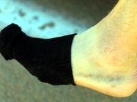 بیماریهایی که موجب کبودی پوست میشوند