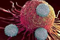 تاثیر میکروبهای روده در ابتلا به سرطان سینه