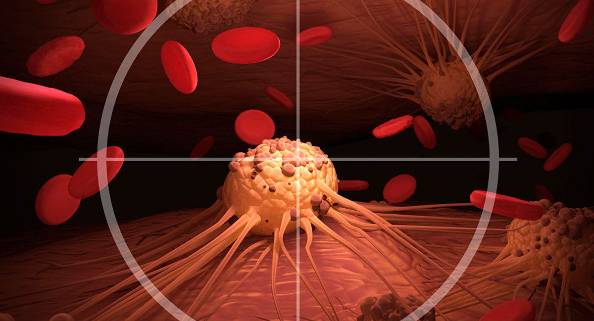 حذف تومورهای سرطانی پروستات در کمتر از یک ساعت