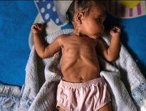 سوءتغذیه کودکان در ونزوئلا +عکس