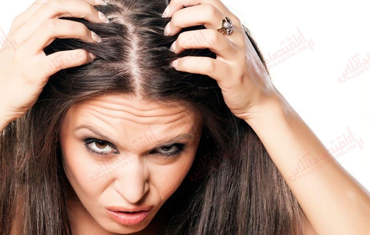 ۹ درمان برای خارش سر
