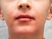 دلایل خشکی پوست اطراف دهان