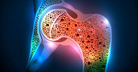 تولید استخوان نیمهزنده وارد مرحله پیش بالینی شد
