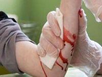 آنچه در مورد جلوگیری از عفونت و مراقبت از خونریزی باید بدانید
