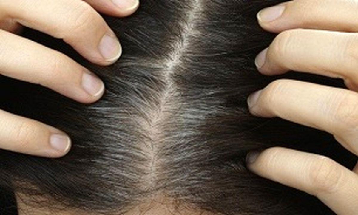 چه چیز باعث سفید شدن مو می شود؟