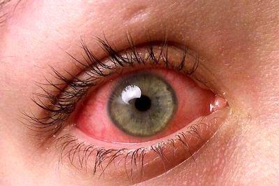 قرمز شدن چشم، علل و راههای درمان
